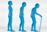 La artrosis incrementa el riesgo de caídas y fracturas osteoporóticas en mujeres postmenopáusicas