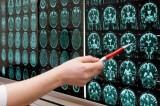 Fumar acorta en 25-30 años la esperanza de vida de los pacientes con trastornos mentales