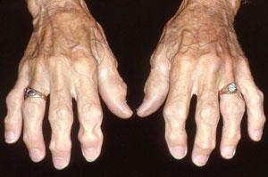 Arthritis Pain Due To Drinking Diet Rite Soda