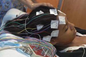 electroencefalograma diagnóstico epilepsia