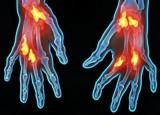 Manual de consulta sobre enfermedades reumáticas