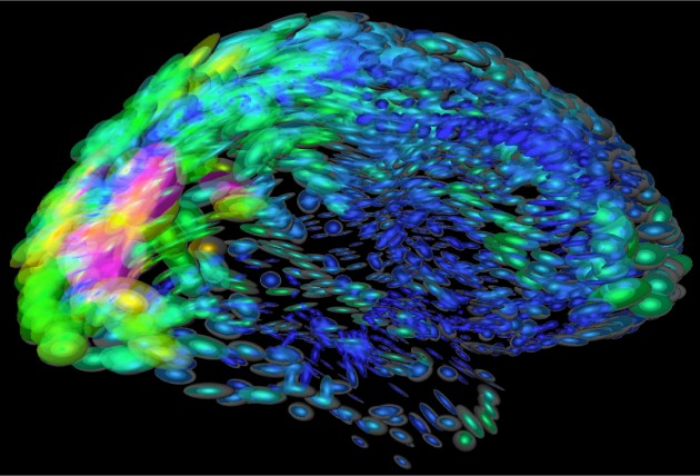 representación del cerebro humano