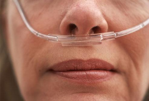 epoc oxigenoterapia