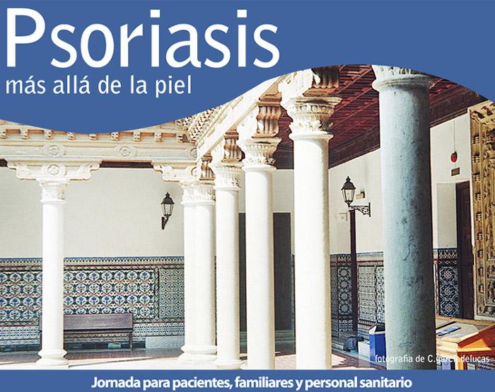 Los síntomas de la psoriasis a los niños sobre la cabeza