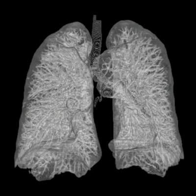 Trasplante pulmones donantes fumadores