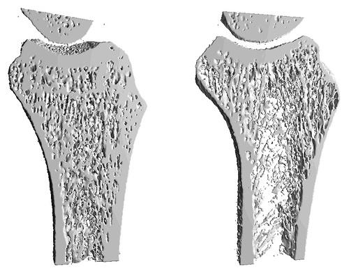 Densitometria. Diagnóstico osteoporosis