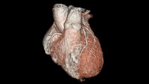 3D_Heart_application_spotlight