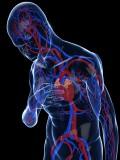 La insuficiencia cardiaca, primera causa de hospitalización en España