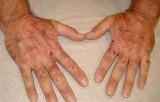 El 80% de los portadores de la porfiria permanecen asintomáticos