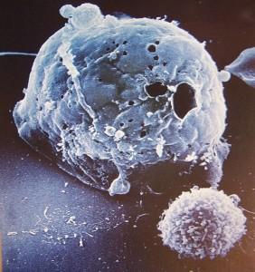 Célula tumoral y célula NK