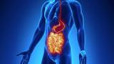 Un estudio identifica dos subtipos diferentes de enfermedad de Crohn
