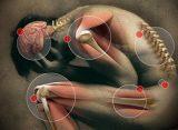 En España conviven tres millones de personas con dolor neuropático