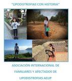 Proyecto 'Lipodistrofias con historia' de AELIP para visibilizar las lipodistrofias